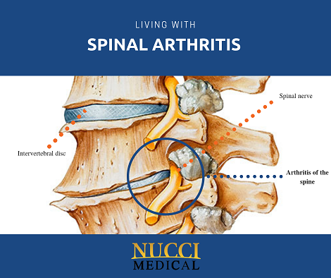 Common MYTHS about Spinal Arthritis
