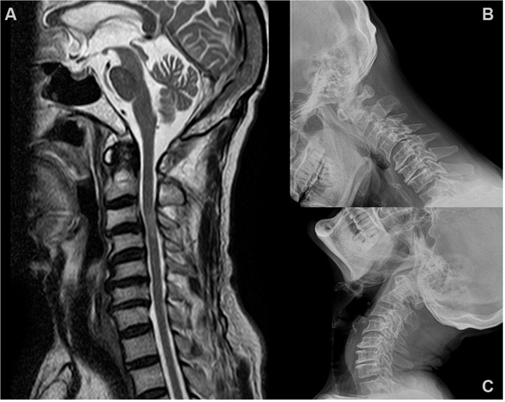 X-ray vs. MRI : Which is better?