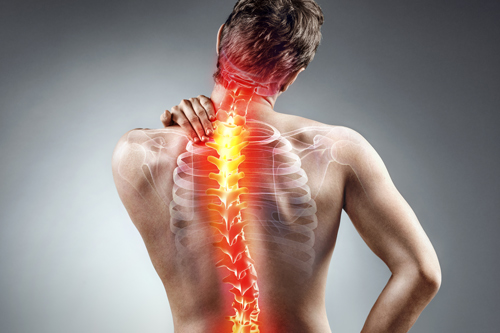 minimally invasive spine surgery, tamp, Fl